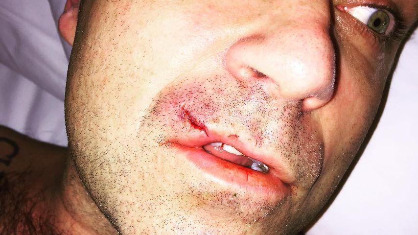 Was ist denn da passiert? Robbie Williams mit blutiger Lippe