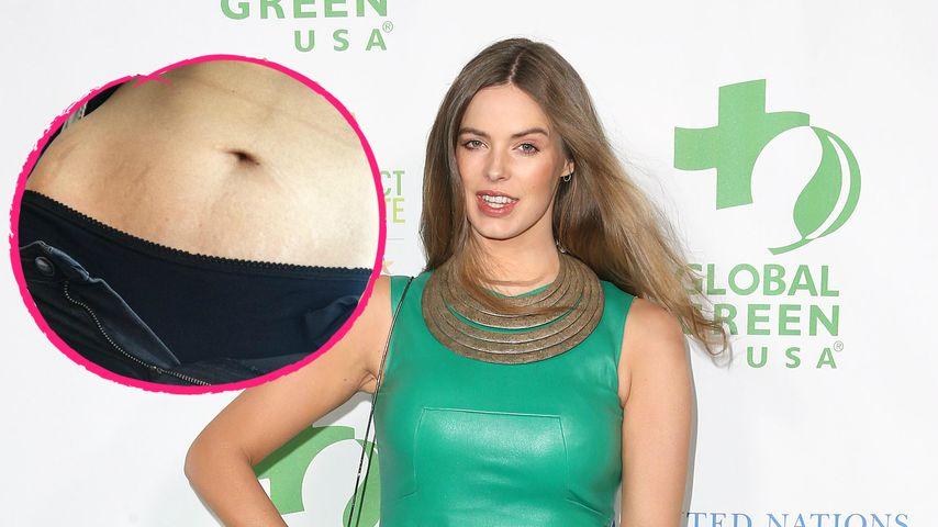 """Robyn Lawley kämpft gegen Body-Kritik: """"Narben machen stark"""""""