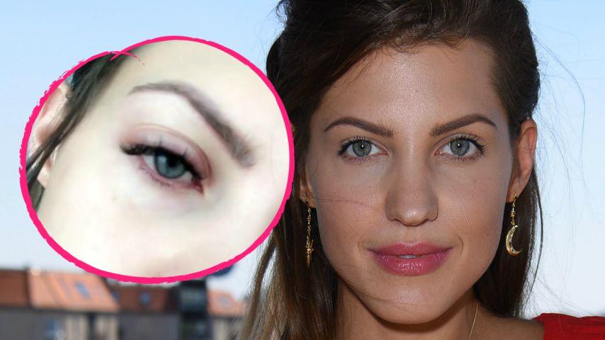 Schmerzhaft: Sarah Harrisons Augen sind total geschwollen!