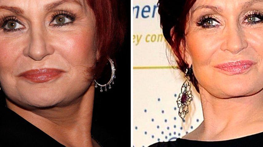 Sharon Osbournes extreme Gesichts-Veränderungen