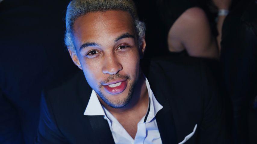 Mega Blondierungs-Fail: Simon Desue fallen die Haare aus!