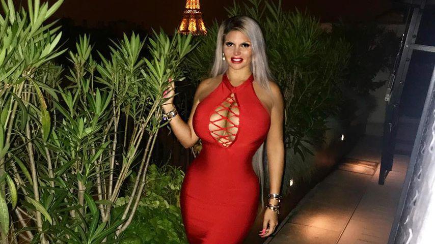 Schwangere Sophia Vegas: Das rät ihr eine Beauty-Ärztin!