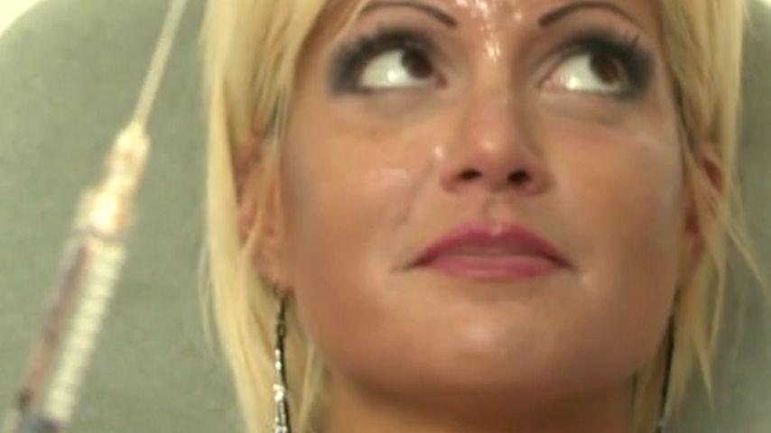 """Botox! Sophia Wollersheim will """"neues"""" Gesicht"""