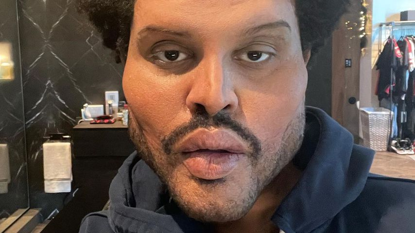 Operiert? Das steckt hinter The Weeknds Totalveränderung!