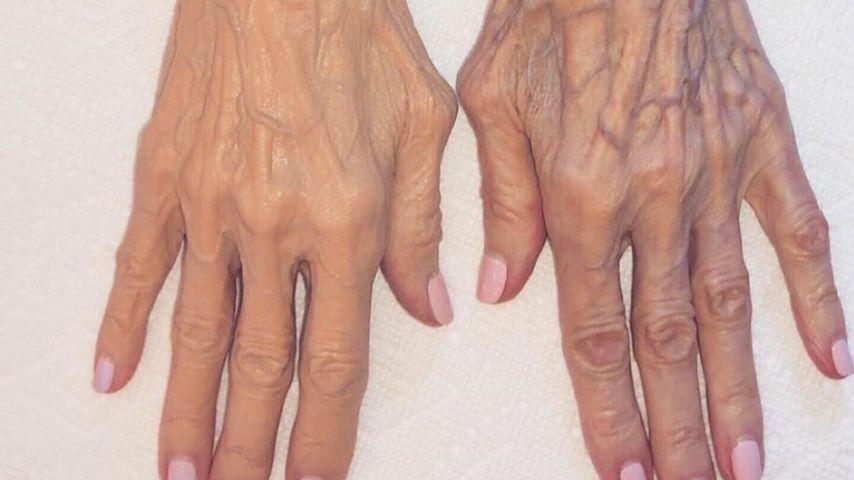 Voher-Nachher-Bild von Mary Jo Shannons Händen nach Kim Kardashians Make-up