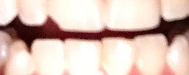 Foto von Justin Biebers Zähnen