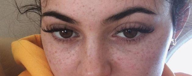 Kylie Jenner mit Sommersprossen